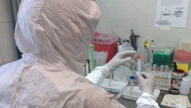 Photo of San Juan: el Hospital Rawson ya procesa muestras de COVID-19